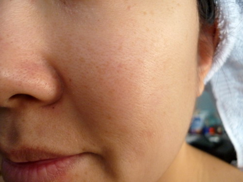 Easy Guides to Help You Treat Visible Pores