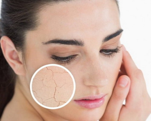 Useful Tips to Help You Treat Dry Skin