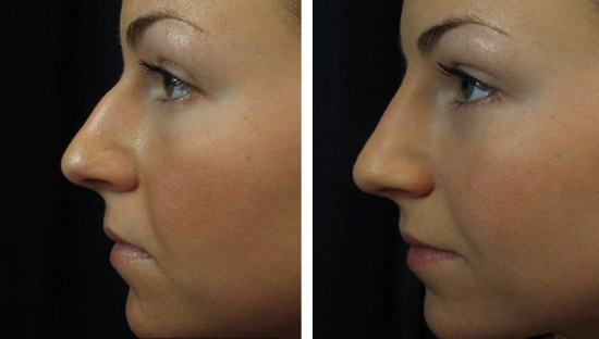 Non-Surgical Nose Jobs